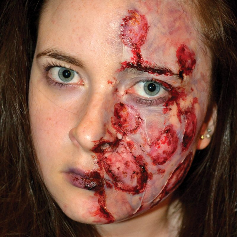 Special FX makeup acid burns